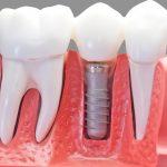 Имплантация зубов: виды, преимущества и недостатки