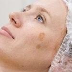 Вітаміни від пігментних плям на обличчі